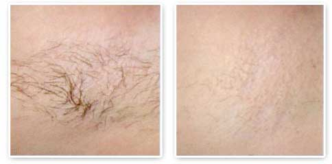 Laser Hair Removal in Toronto and Mississauga