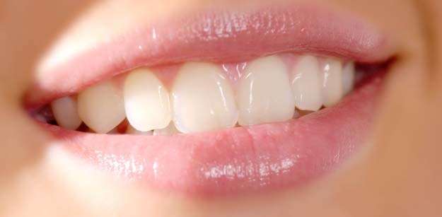 Teeth Whitening Treatments in Toronto and Mississauga