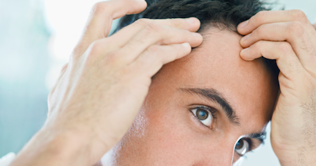 How to Treat Hair Loss Due to Anxiety and Stress